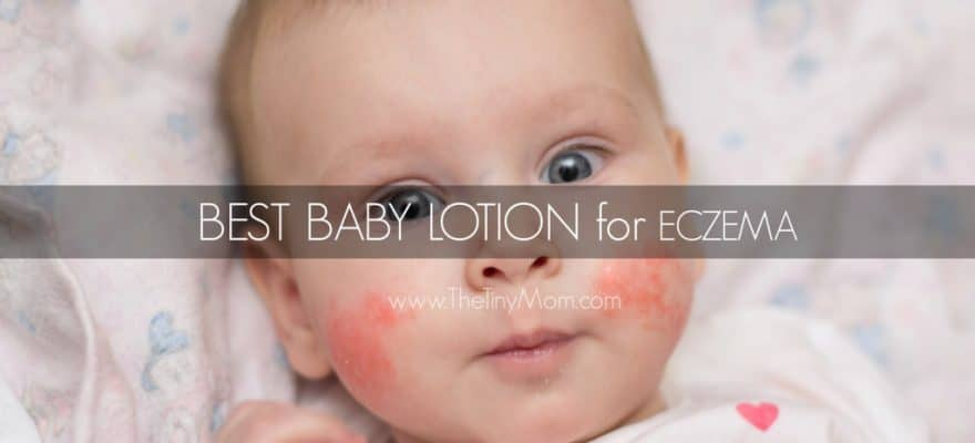 The 13 Best Baby Lotion for Eczema (2019 Reviews)